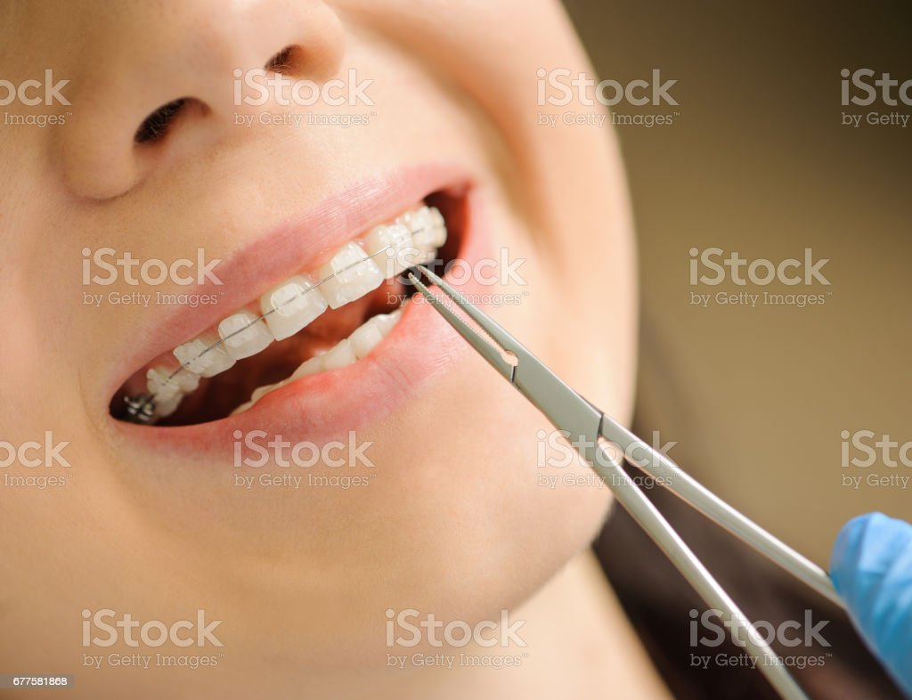 Woman with ceramic braces on teeth at the dental office royalty-free stock photo