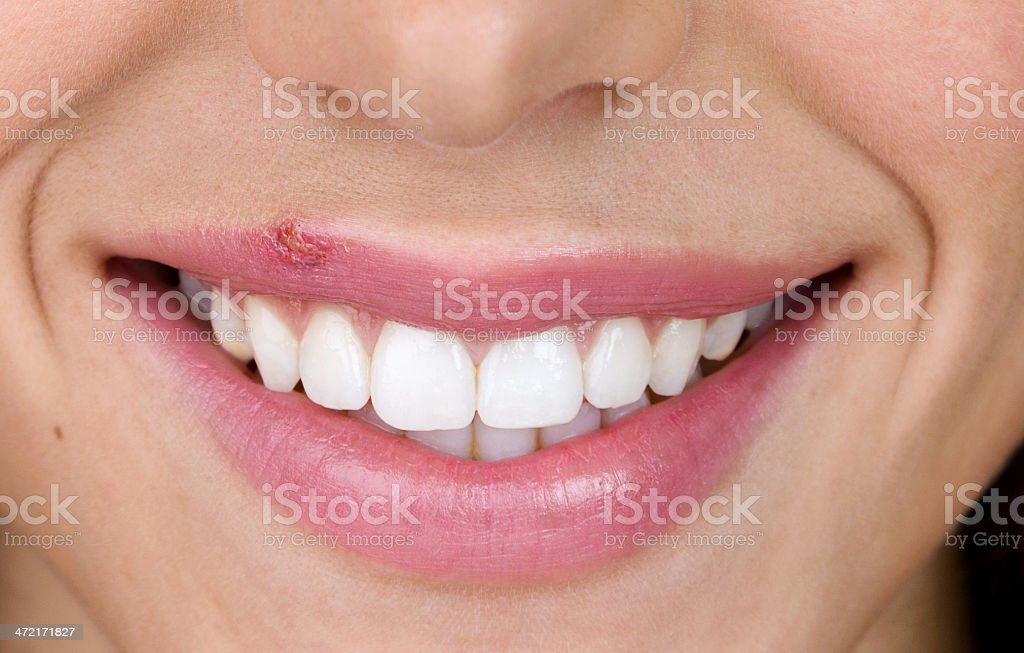 Woman with cold sore stock photo