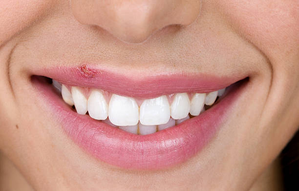 Woman with cold sore Closeup of female mouth with a cold sore on her lip  herpes stock pictures, royalty-free photos & images