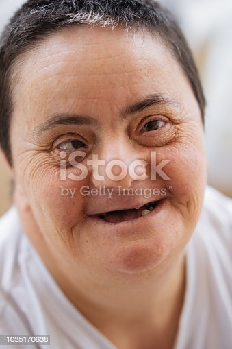 594475880istockphoto Woman with down syndrome smiling 1035170638