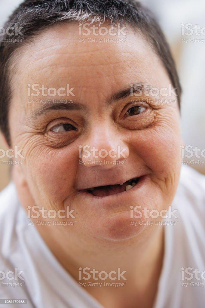 Frau mit Down-Syndrom zu Lächeln – Foto