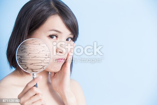 istock woman with dry skin 871125160