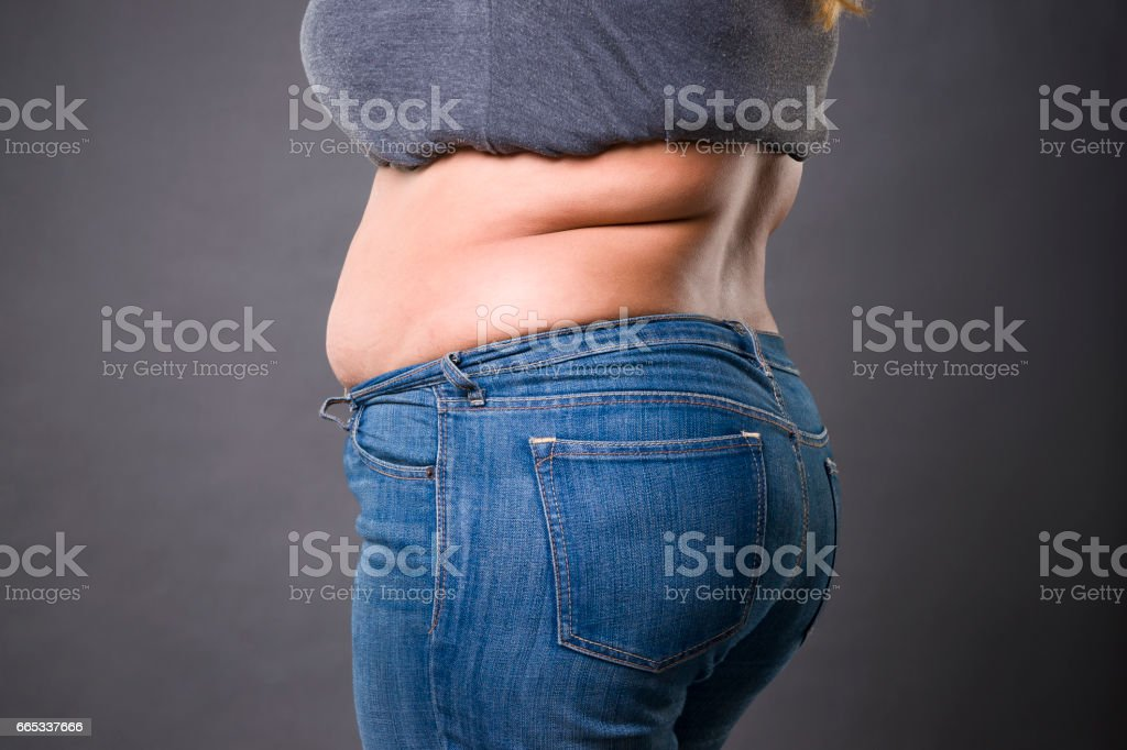 Woman with fat abdomen in blue jeans, overweight female stomach, stretch marks on belly closeup stock photo