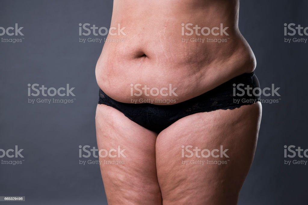 Frau Mit Fetten Bauch Übergewicht Weiblichen Bauch ...