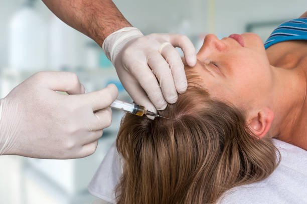 Woman with hair problem is receiving injection stock photo