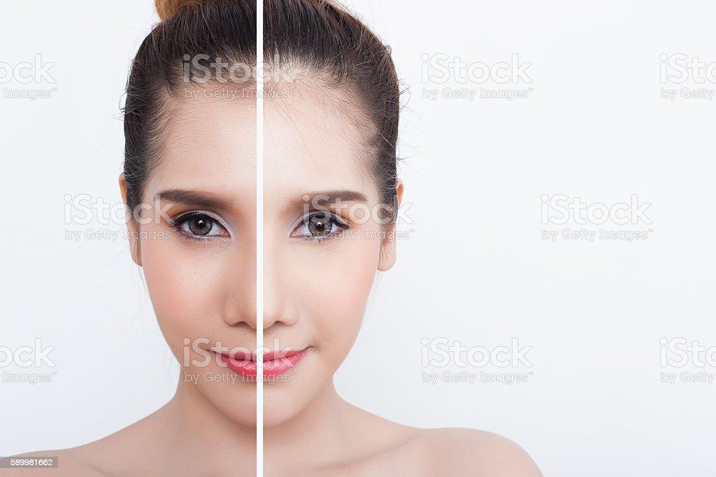 woman with half light half dark skin stock photo