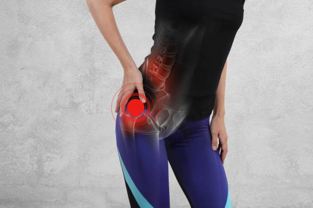 woman with hip joint pain. sport exercising injury - dolore fisico foto e immagini stock
