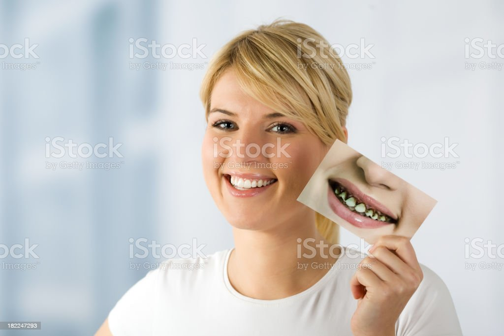 woman with image of rotten teeths stock photo