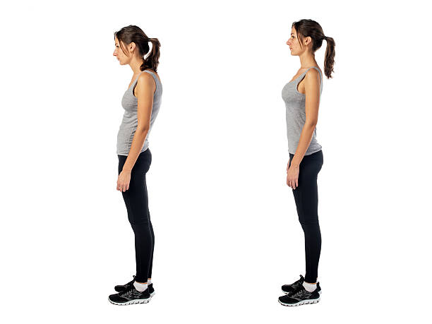 Woman with impaired posture position defect scoliosis and ideal bearing stock photo