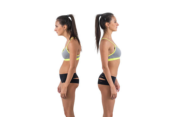 Woman with impaired posture position defect scoliosis and ideal bearing Woman with impaired posture position defect scoliosis and ideal bearing. bad posture stock pictures, royalty-free photos & images