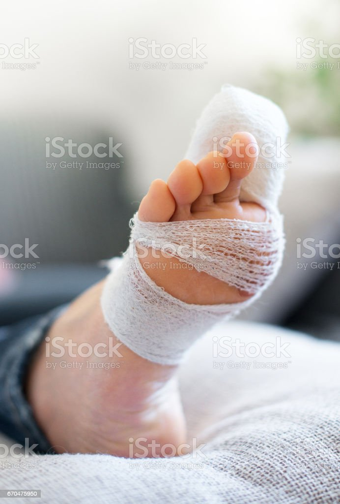 Woman with injured leg on sofa at home. stock photo