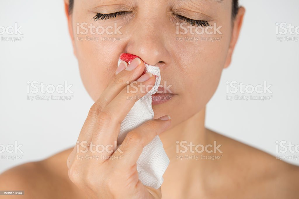 Woman With Nosebleed stock photo