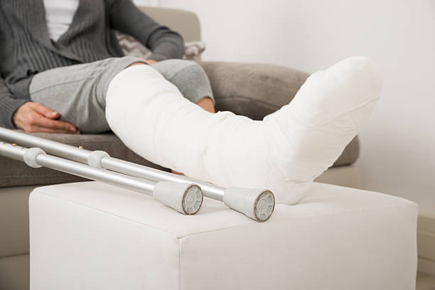 woman with plastered leg sitting on couch - broken leg stock photos and pictures