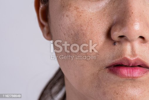 istock Woman with problematic skin and acne scars. Problem skincare and health concept. Wrinkles melasma Dark spots freckles dry skin and pigmentation on face asian woman. 1162756549