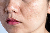 istock Woman with problematic skin and acne scars. Problem skincare and health concept. Wrinkles melasma Dark spots freckles dry skin and pigmentation on face asian woman. 1171250814