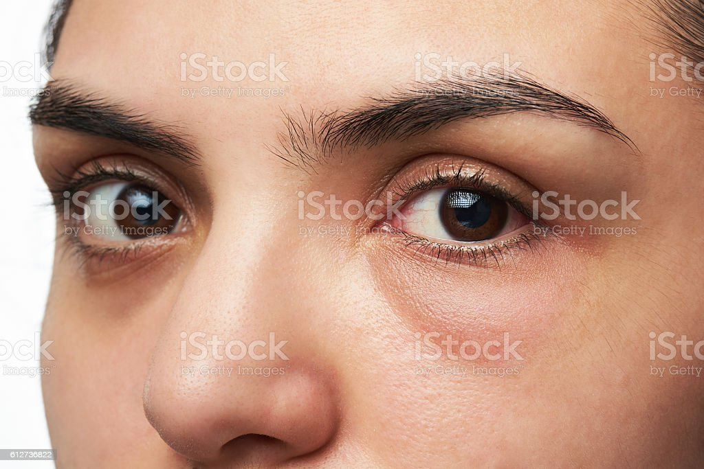 woman with red eye stock photo