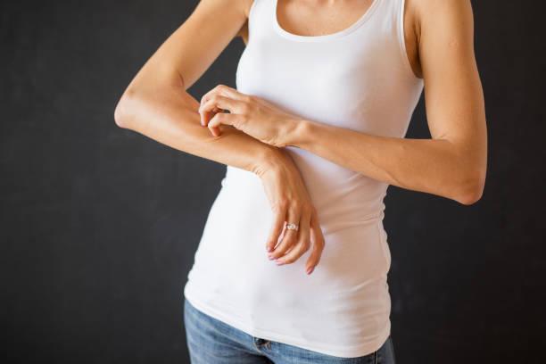 Woman with skin eczema problem stock photo