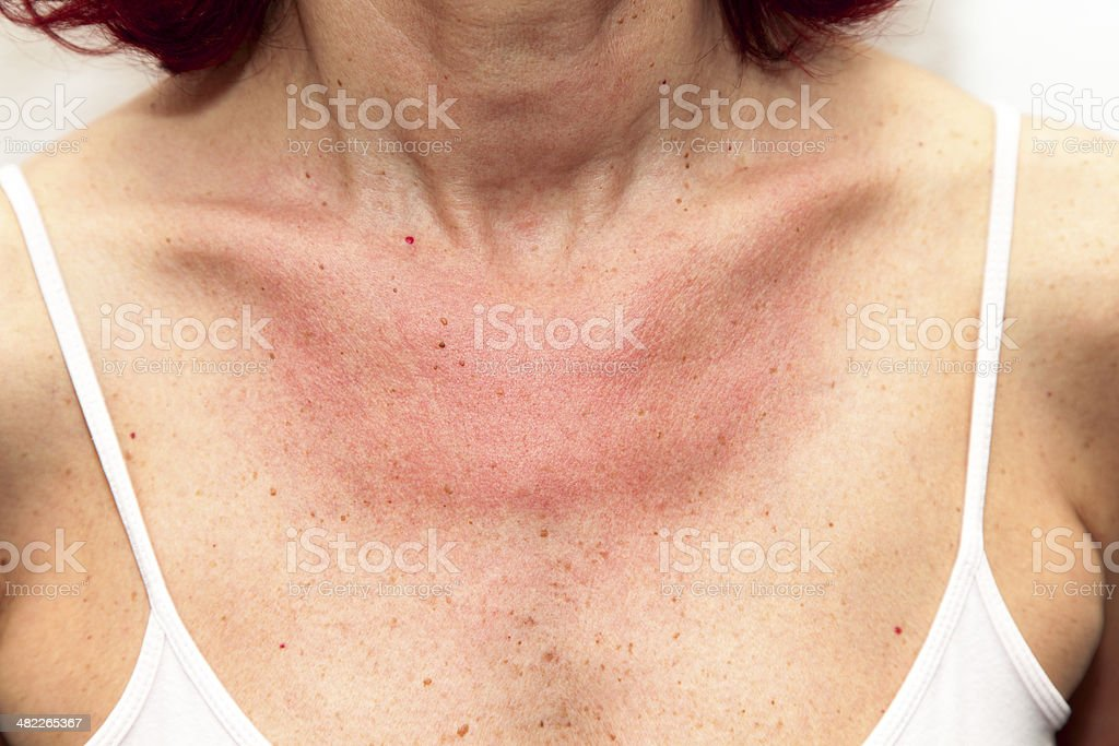 Woman with sunburns and Allergic reaction stock photo