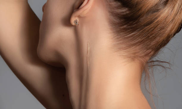 Woman with surgery scar at her neck. Woman with surgery scar at her neck. scar stock pictures, royalty-free photos & images