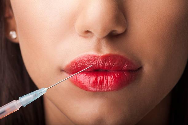 Botox injection in upper lip