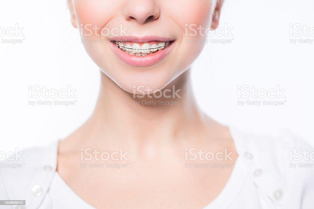 Mujer con dientes frenillos - foto de stock