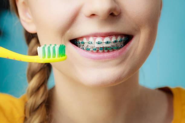 mulher com aparelho de dentes com escova - escova interdental - fotografias e filmes do acervo