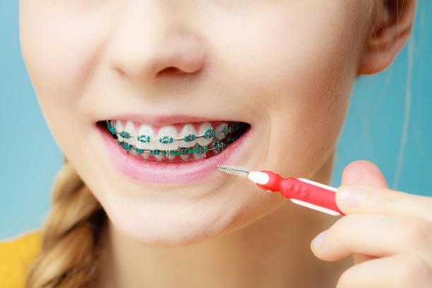 mulher com aparelho de dentes com escova interdental - escova interdental - fotografias e filmes do acervo
