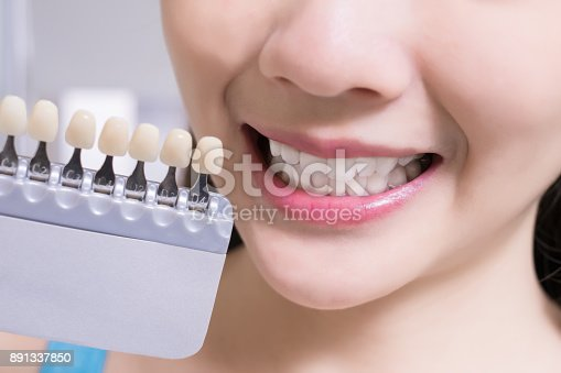 istock woman with tooth color palette 891337850