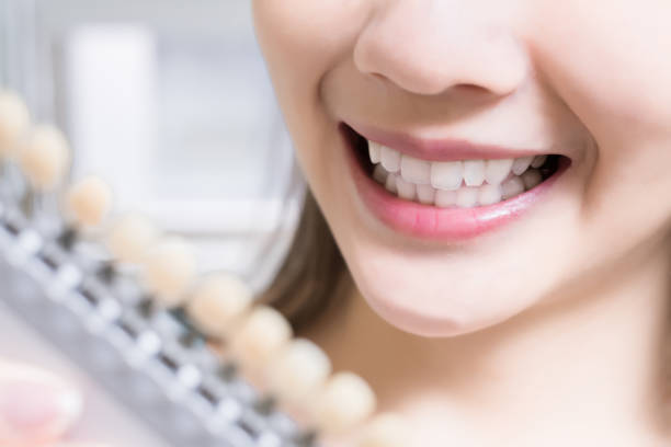 Frau mit Zahn-Farbpalette – Foto