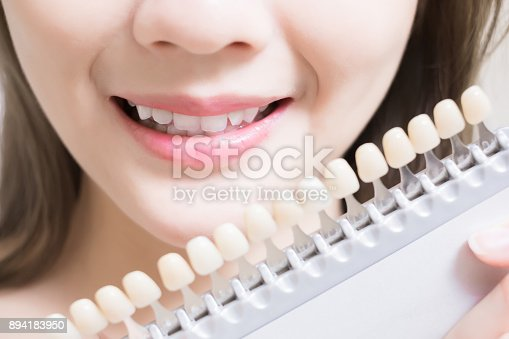 istock woman with tooth color palette 894183950