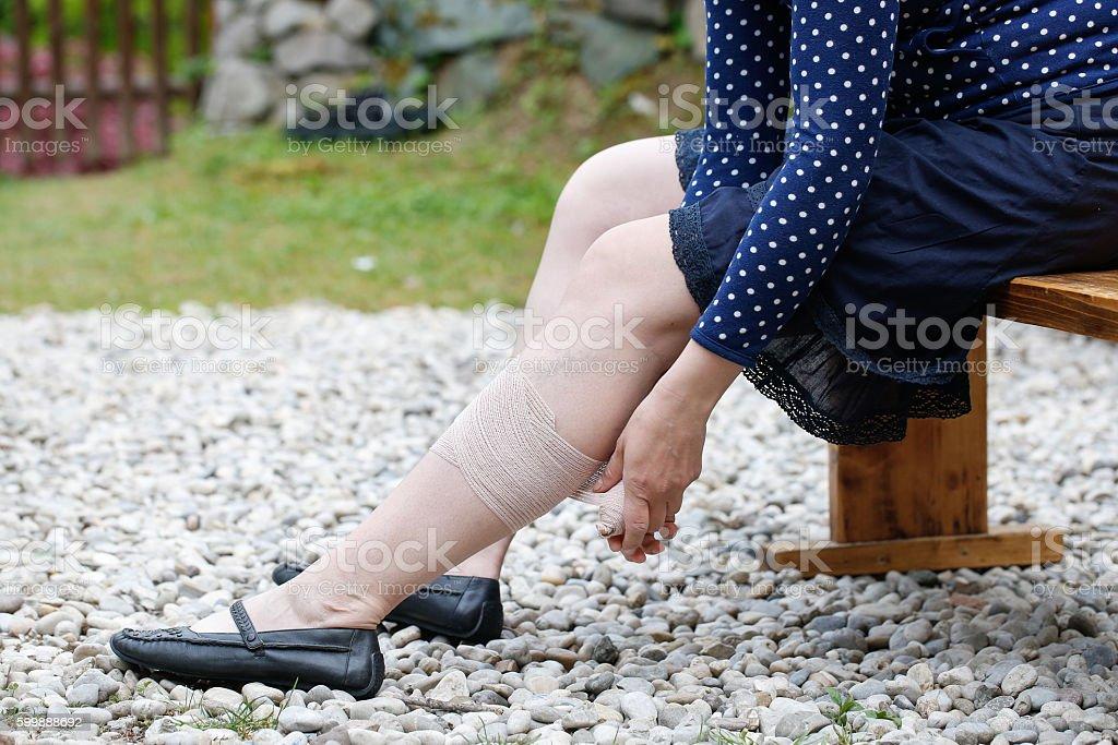 Femme avec les varices appliquant une bande de compression - Photo