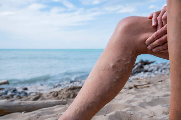 A woman with varicose veins on the beach in the summer. stock photo