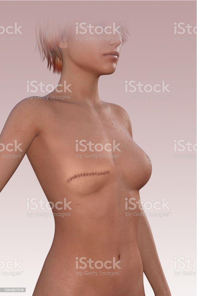 Frau ohne Brust nach einer Mastektomie. Narben Sie auf dem Körper. – Foto