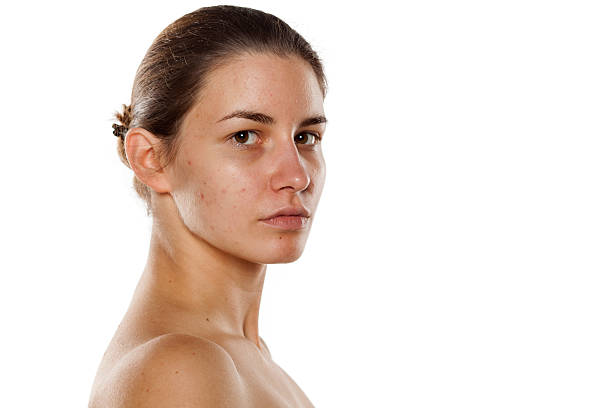 woman without makeup stock photo