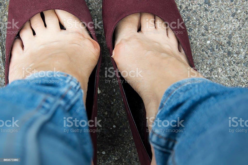 Frau trug Stöckelschuhe. Hallux valgus mit schmale Schuhe - Lizenzfrei Atelier Stock-Foto