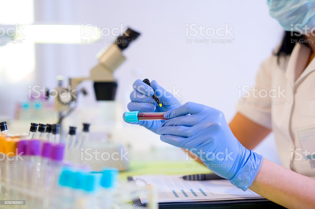Woman working in a laboratory, writing with a felt pen. stock photo