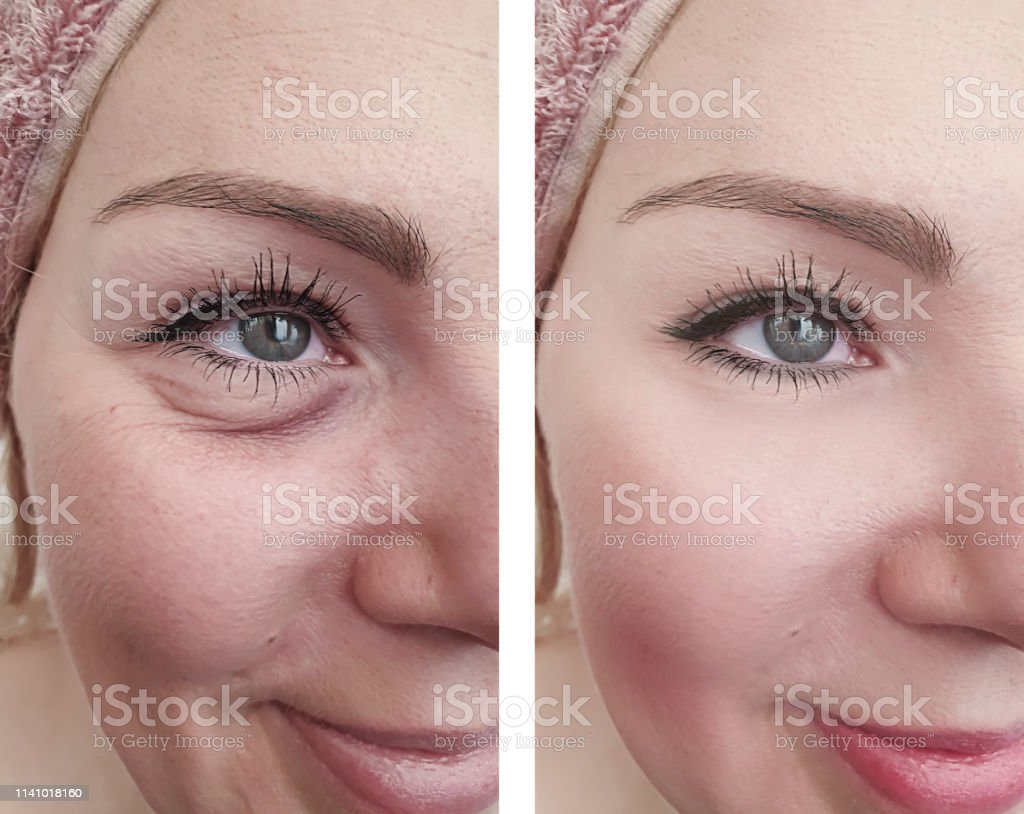 woman wrinkles before and after correction procedures woman wrinkles before and after correction procedures Adult Stock Photo