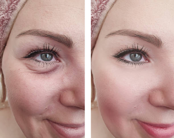 woman wrinkles before and after correction procedures woman wrinkles before and after correction procedures antiaging stock pictures, royalty-free photos & images