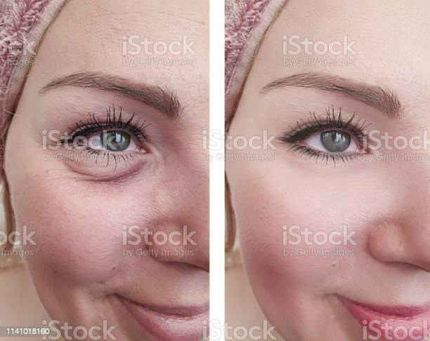Woman Wrinkles Before And After Correction Procedures Stock Photo - Download Image Now
