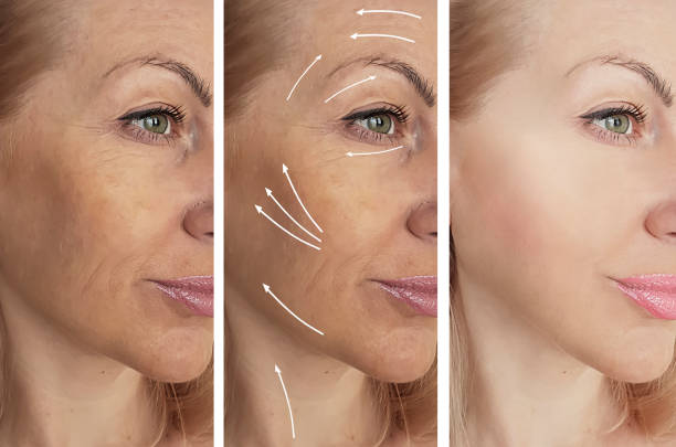 woman wrinkles before and after procedures, arrow woman wrinkles before and after procedures, arrow tighten stock pictures, royalty-free photos & images