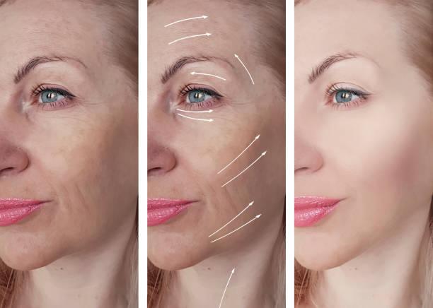kvinnan rynkor före och efter procedurer, pil - filler swollen bildbanksfoton och bilder