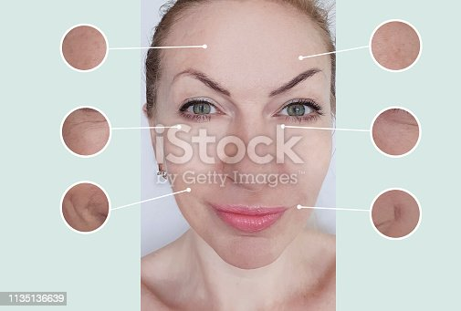 istock woman wrinkles before and after treatments 1135136639