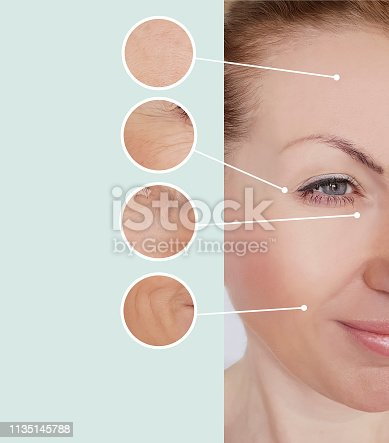istock woman wrinkles before and after treatments 1135145788