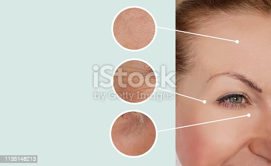 istock woman wrinkles before and after treatments 1135148213