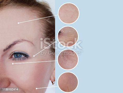 istock woman wrinkles before and after treatments 1135152414