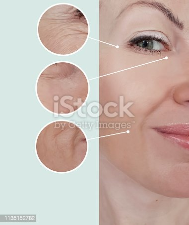 istock woman wrinkles before and after treatments 1135152762