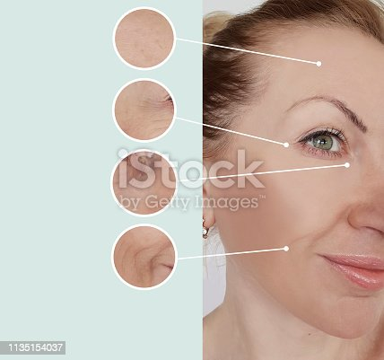 istock woman wrinkles before and after treatments 1135154037