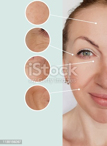 istock woman wrinkles before and after treatments 1135156267
