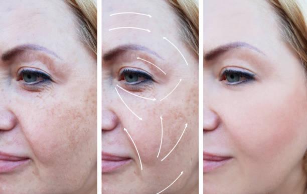 kvinna rynkor korrigering före och efter förfaranden, pil, pigmentering - filler swollen bildbanksfoton och bilder