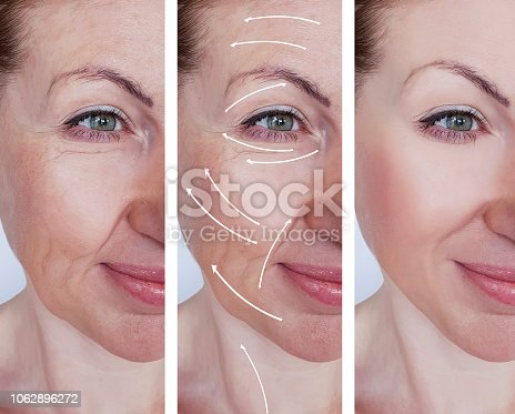 istock woman wrinkles correction before and after treatments arrow 1062896272
